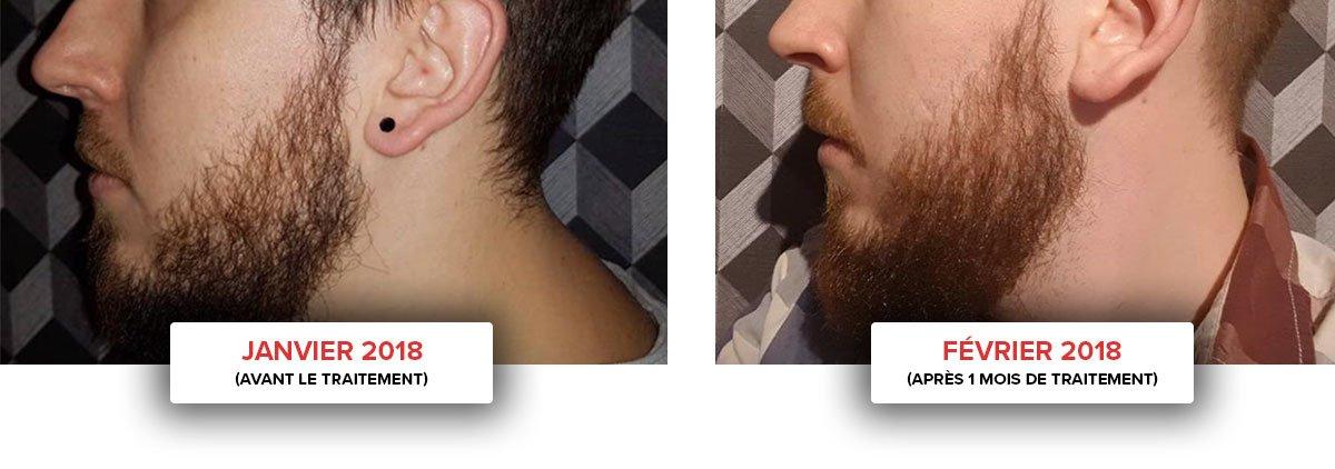 accelerateur barbe